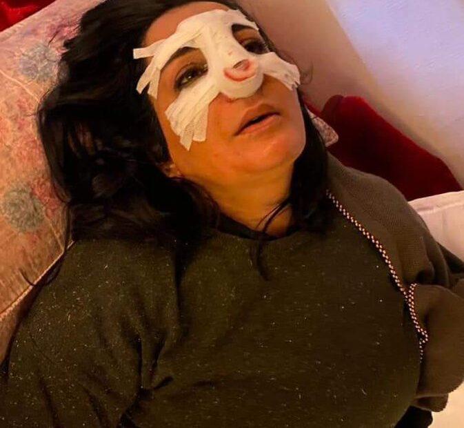 نجاة الناشطة اميرة جابر من الموت باعجوبة في الكرادة ببغداد